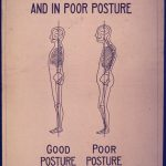 poster showing skeletons with good and bad posture